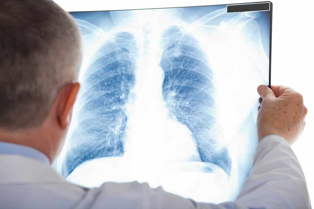 Doctor looking at pneumonia on x-ray
